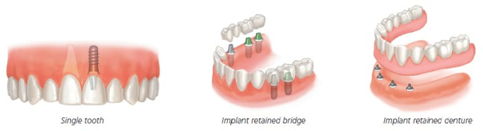 Dental Implants Scenarios at Divine Dental Clinic